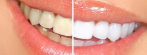 The teeth whitening